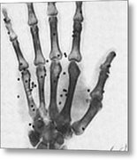 X-ray Of A Hand With Buckshot Metal Print