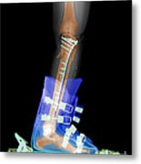 X-ray Of Broken Bones In Ski Boot Metal Print
