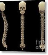 3d Rendering Of Human Vertebral Column Metal Print