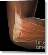 Tennis Elbow Metal Print