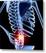 Back Pain Metal Print