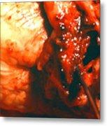 Blocked Artery. Metal Print