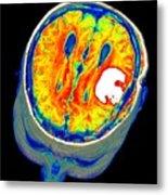 Brain Tumour, 3d-mri Scan Metal Print by Pasieka