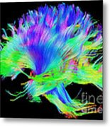 Fiber Tracts Of The Brain, Dti Metal Print