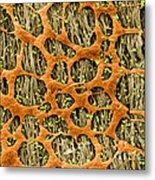 Myenteric Plexus, Sem Metal Print