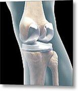 Knee Replacement Metal Print
