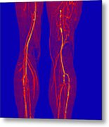 Atherosclerosis, Ct Angiogram Metal Print