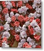 Cells From A Urine Infection, Sem Metal Print