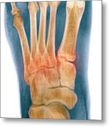 Crushed Broken Foot, X-ray Metal Print by