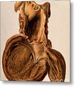 Diseased Heart, Aneurysm, Illustration Metal Print