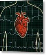 Ekg And Heart Over Torso Metal Print