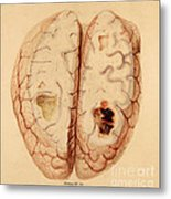 Extravasated Blood, Brain Metal Print