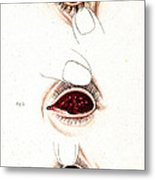 Eye Inflammations, Historical Metal Print