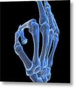Hand Gesture Metal Print by MedicalRF.com
