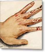 Hand With Roentgen Ray X-ray Metal Print