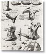 Kidney Stones, 18th Century Metal Print