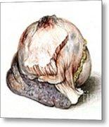 Large Hyatid Cyst In Spleen Metal Print