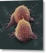 Lung Cancer Cell Division Metal Print