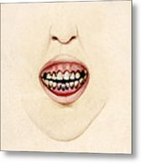 Mouth Of Gouty Patient, Illustration Metal Print