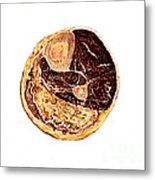 Muscle Degeneration, Fibrosis And Fat Metal Print