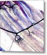 Muscle Motor Neurones, Light Micrograph Metal Print