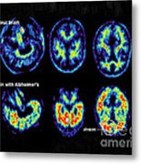 Normal And Alzheimer Brains, Pet Scans Metal Print