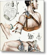 Operative Surgery, Illustration, 1846 Metal Print
