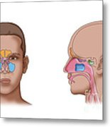 Paranasal Sinuses, Illustration Metal Print