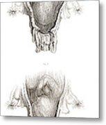 Placenta Previa, Illustration Metal Print