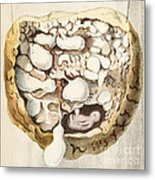 Placenta With Tumors, Illustration, 1836 Metal Print