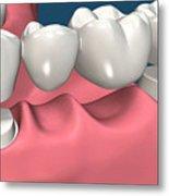 Restorations For Missing Teeth Implants, Dentures And Bridges Metal Print