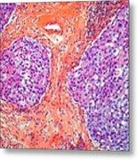 Breast Cancer, Light Micrograph Metal Print