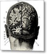 Humain Brain -vintage Engraved Metal Print
