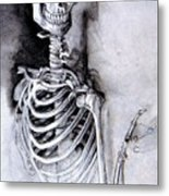 Portrait Of A Skeleton Metal Print