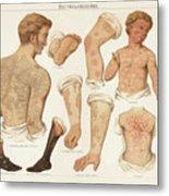 Skin Diseases, Chromolitograph Metal Print