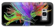 White Matter Fibres Of The Human Brain Galaxy S8 Case