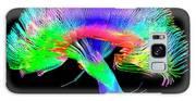 Brain Pathways Galaxy S8 Case