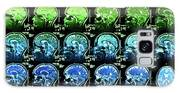 Coloured Mri Scans Of A Healthy Human Brain Galaxy S8 Case