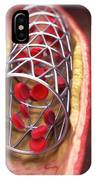 Arterial Stent IPhone Case