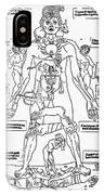 Bloodletting Chart, 1493 IPhone Case