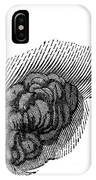 St. Martins Fistula IPhone Case