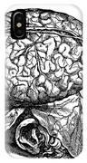 Vesalius: Brain, 1543 IPhone Case