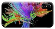 White Matter Fibres Of The Human Brain IPhone X Case