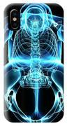 Female Skeleton IPhone Case