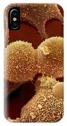 Human Fibroblast Cells IPhone Case