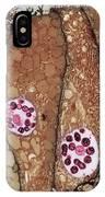Chlamydia Infection Tem IPhone Case