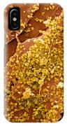 Human Skin Cell Sem IPhone Case