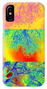Collage Of Trees IPhone Case