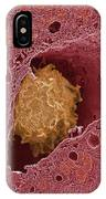 Liver Macrophage Cell IPhone Case