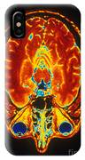 Mri Of Brain IPhone Case